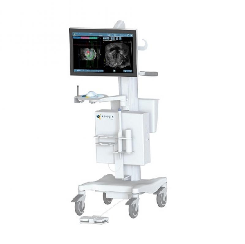 Koelis Trinity MR Füzyon Prostat Biyopsi Sistemi